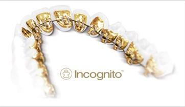 ingognito1