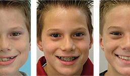 orthodontiki gia paidia